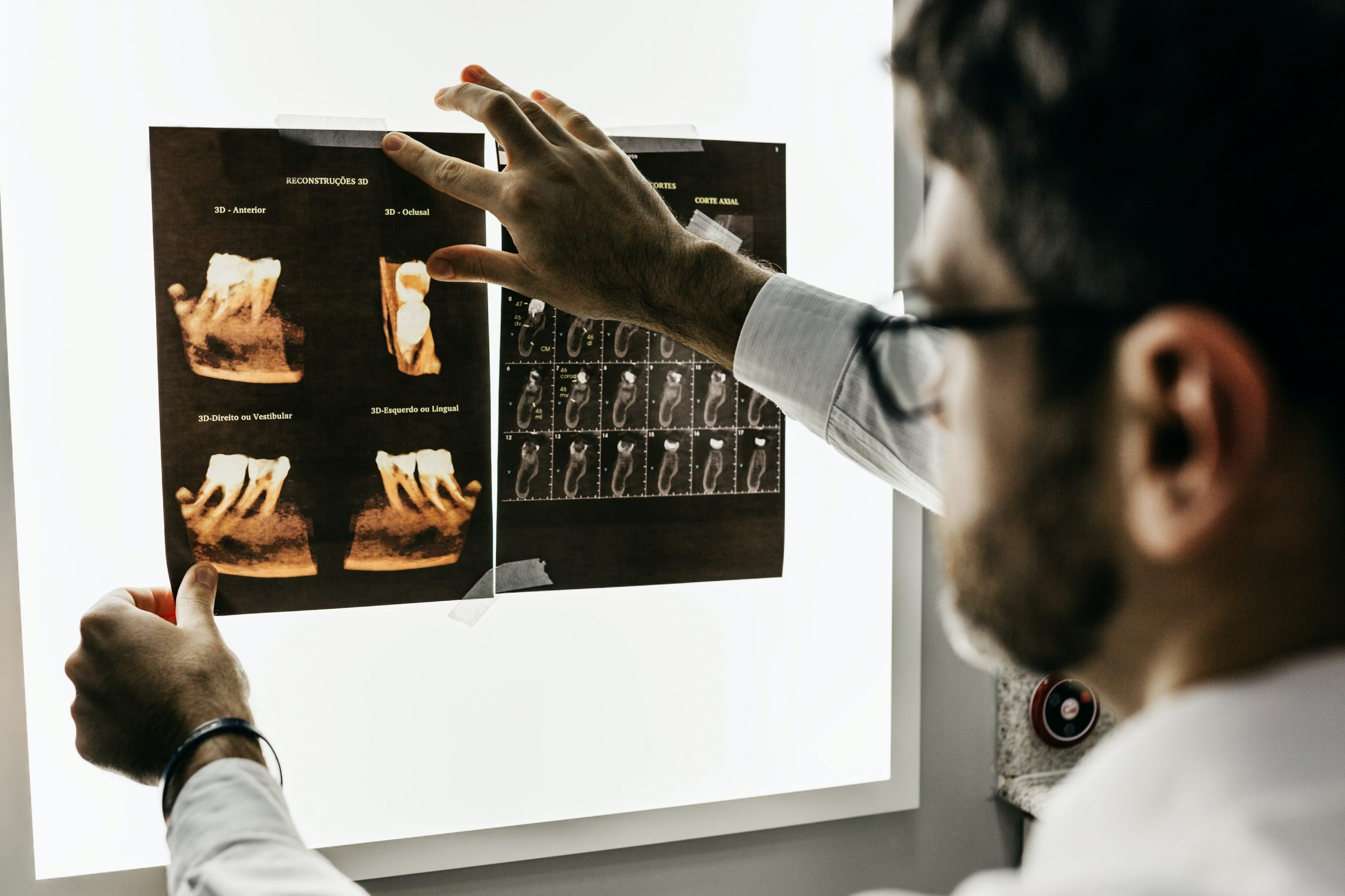 Tooth X-Rays