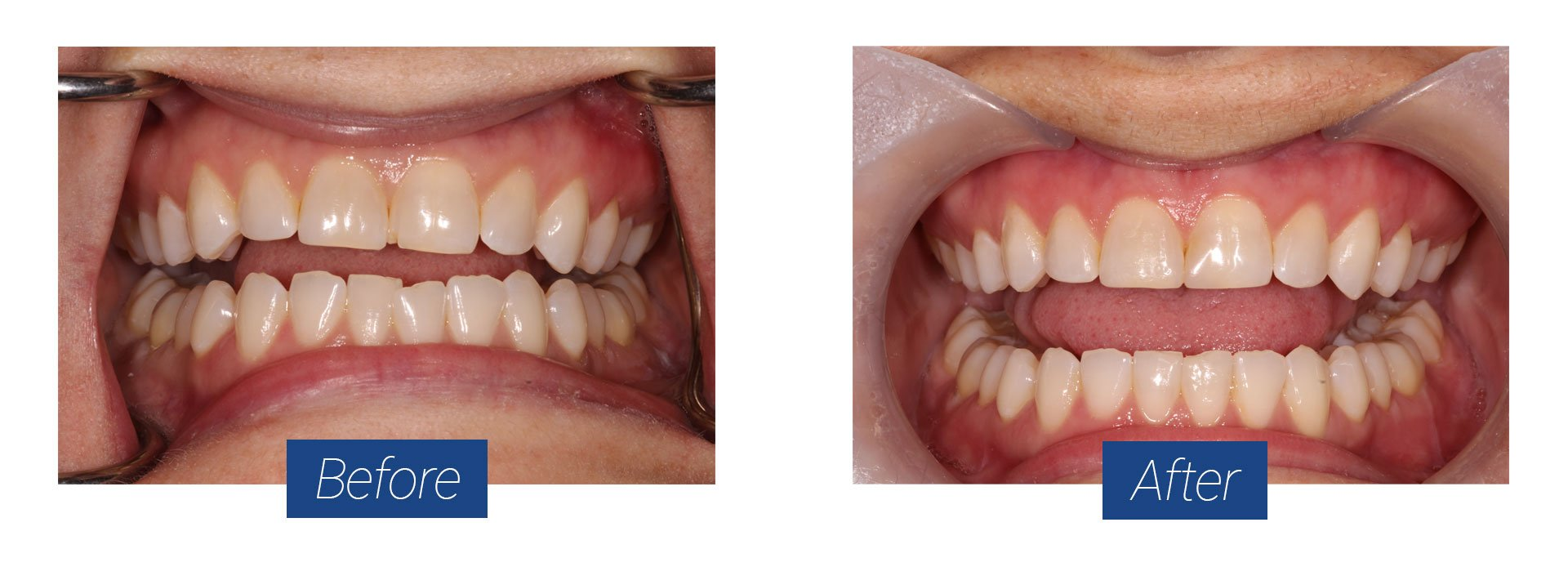 Invisalign Before and After 2 in Hagerstown MD