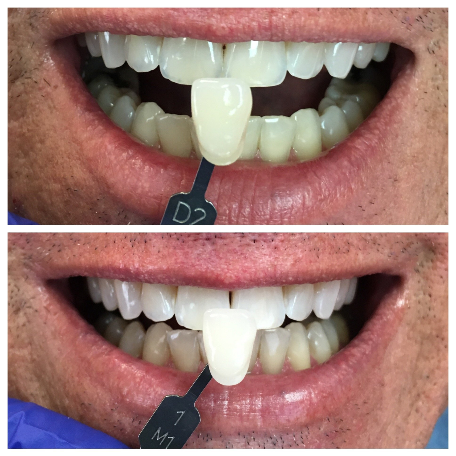 Zoom Whitening Before and After Hagerstown MD