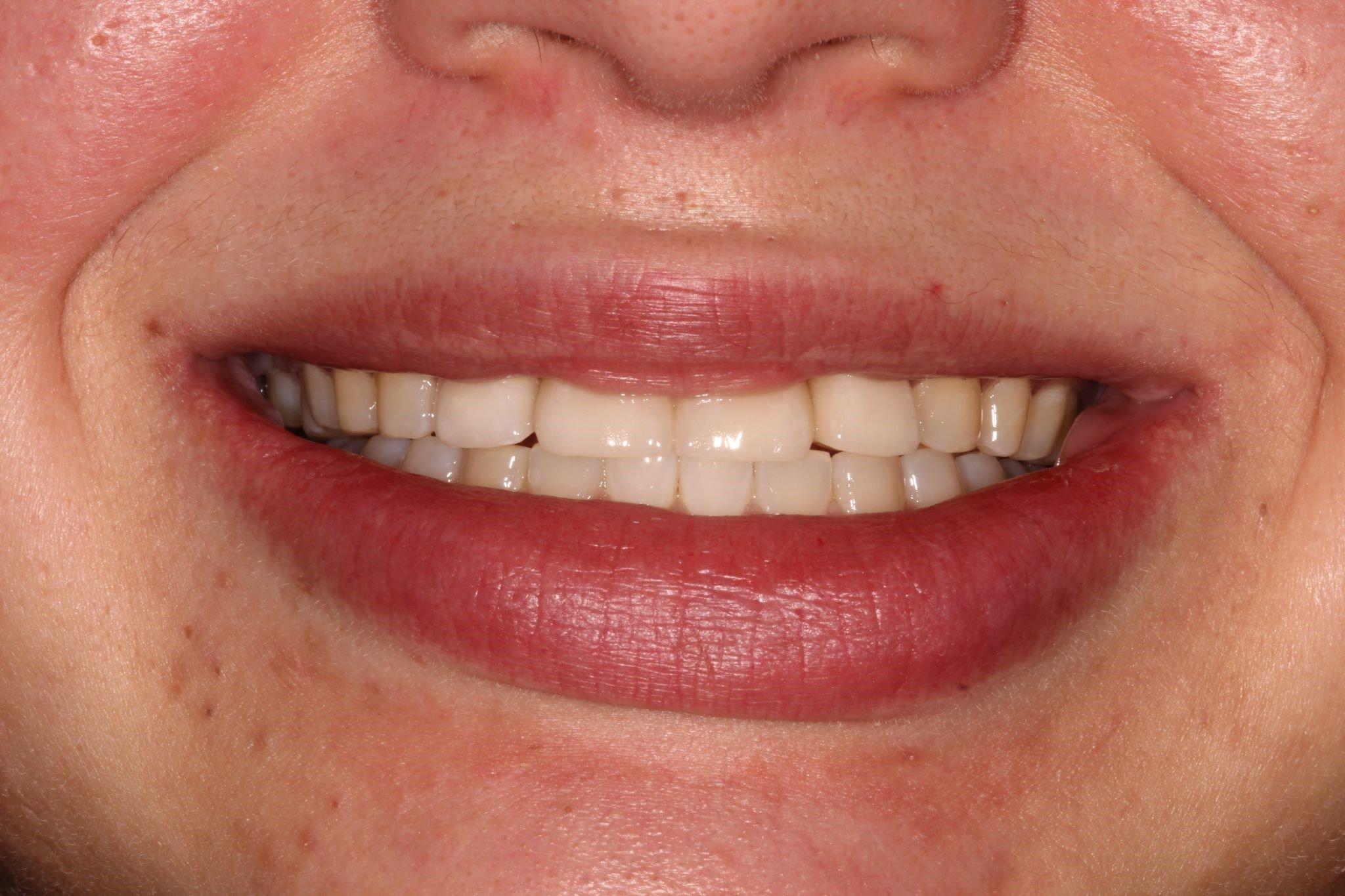 Dental Veneers After Picture