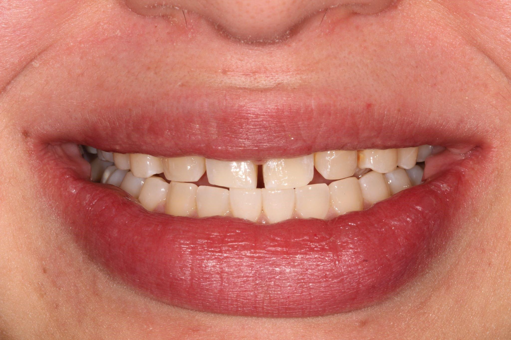 Dental Veneers Before Picture